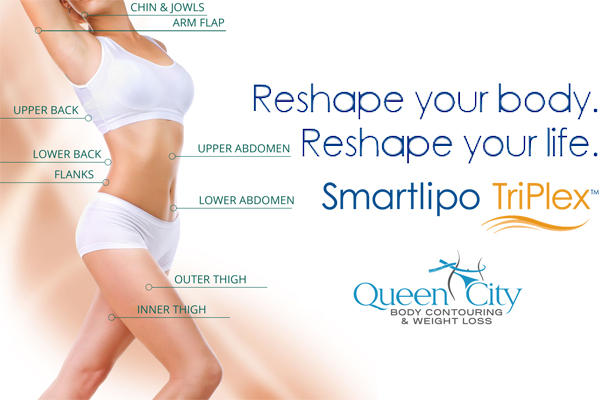 Treatment areas of SmartLipo Triplex